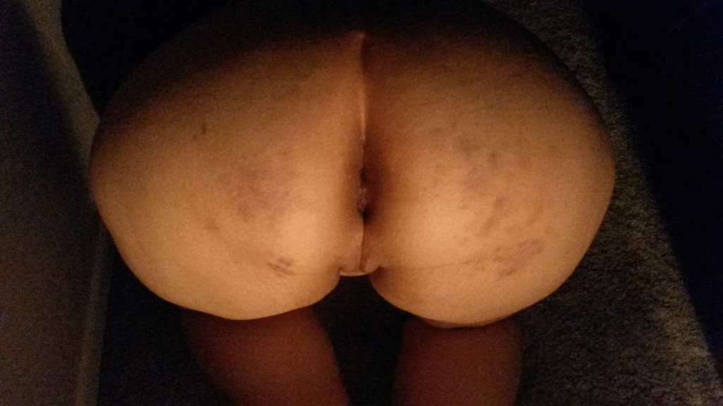 Marked from a spanking.